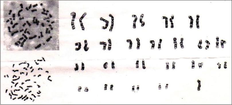 Figure 3: Conventional chromosomal analysis from blood lymphocytes revealing a karyotype of 45X pattern