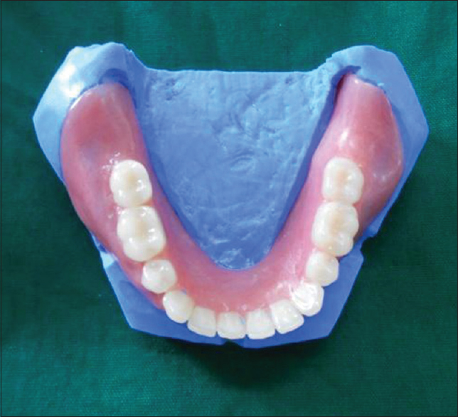 Figure 2: Existing complete denture on the trimmed cast
