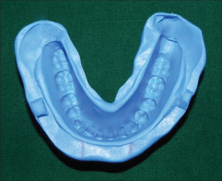 Figure 4: A negative impression of the existing complete denture made from the silicone mold