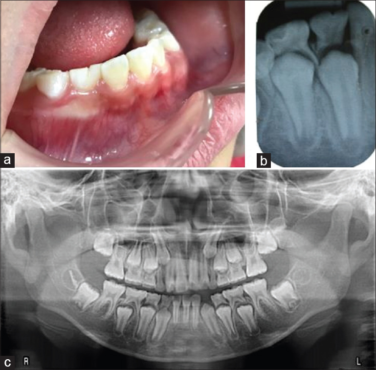Figure 3: Fusion: Intraoral and radiographic views. (a) Clinical picture, (b) IOPAR, (c) OPG